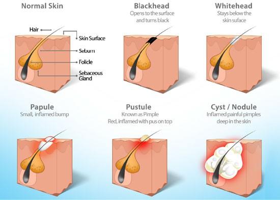 types-acne